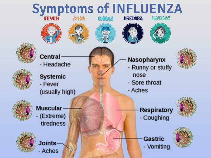 the causes symptoms and treatment of pneumonia influenza Pneumonia is a serious and potentially fatal bacterial or viral infection of the lungs: causes, symptoms, diagnosis, treatment.
